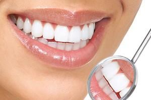 Как проходит установка виниров на зубы?